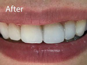 Smile Transformation After