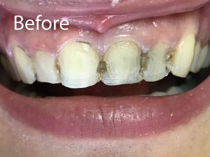Smile Transformation Before #2